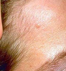 Basal Cell Carcinoma skin infection