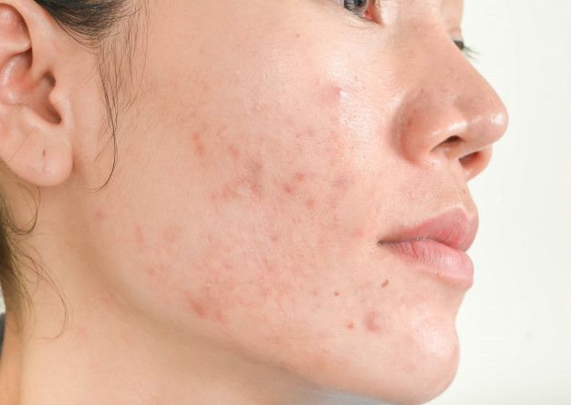 common skin conditions and how to treat them