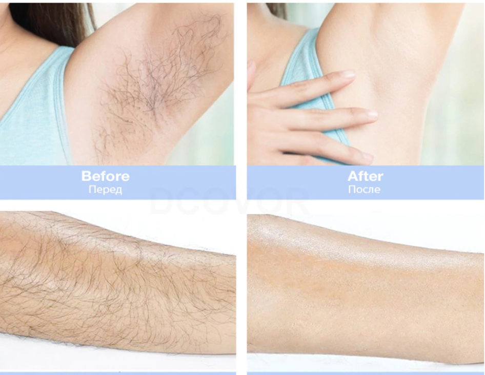 laser hair removal before and after results