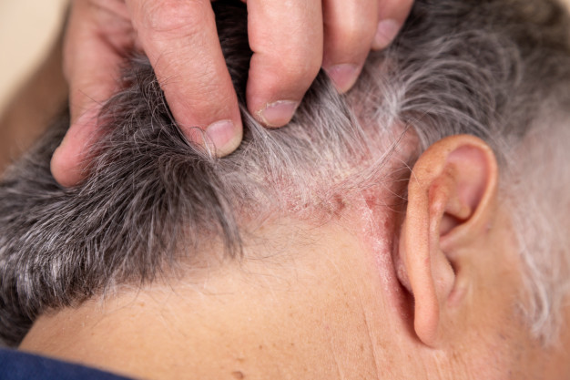 man holding hair scalp dry dandruff
